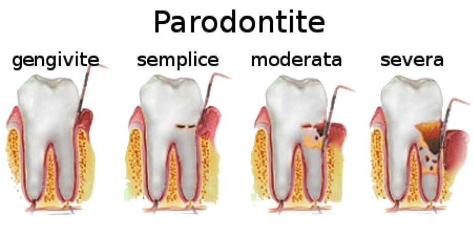 parodontite gengivite piorrea