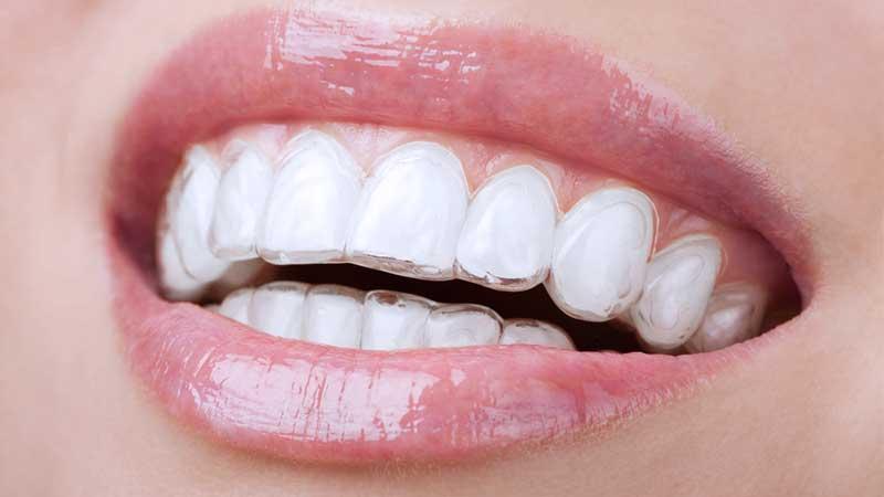 ortodonzia-bite-bruxismo-invisibile-sassuolo-modena